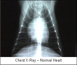 heart2_-_mitral_valve_disease-3