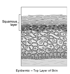 skin_-_squamous_cell_carcinoma_in_dogs-1